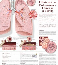 Facts and details about Chronic Obstructive Pulmonary Disease infographic