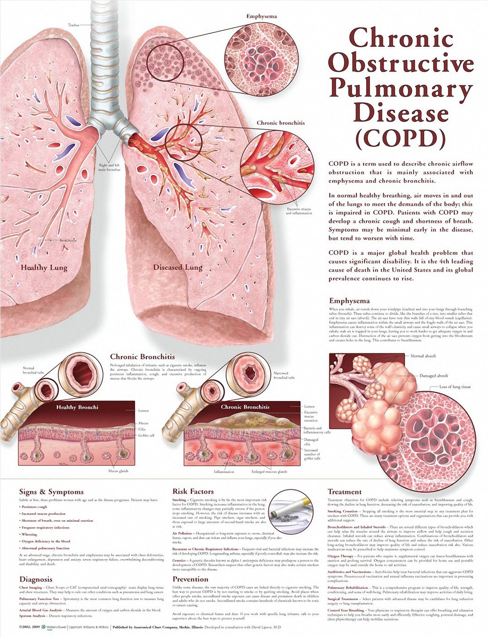 Facts and details about Chronic Obstructive Pulmonary Disease infogragphic