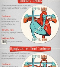 Everything that you need to know about congenital heart defects infographic