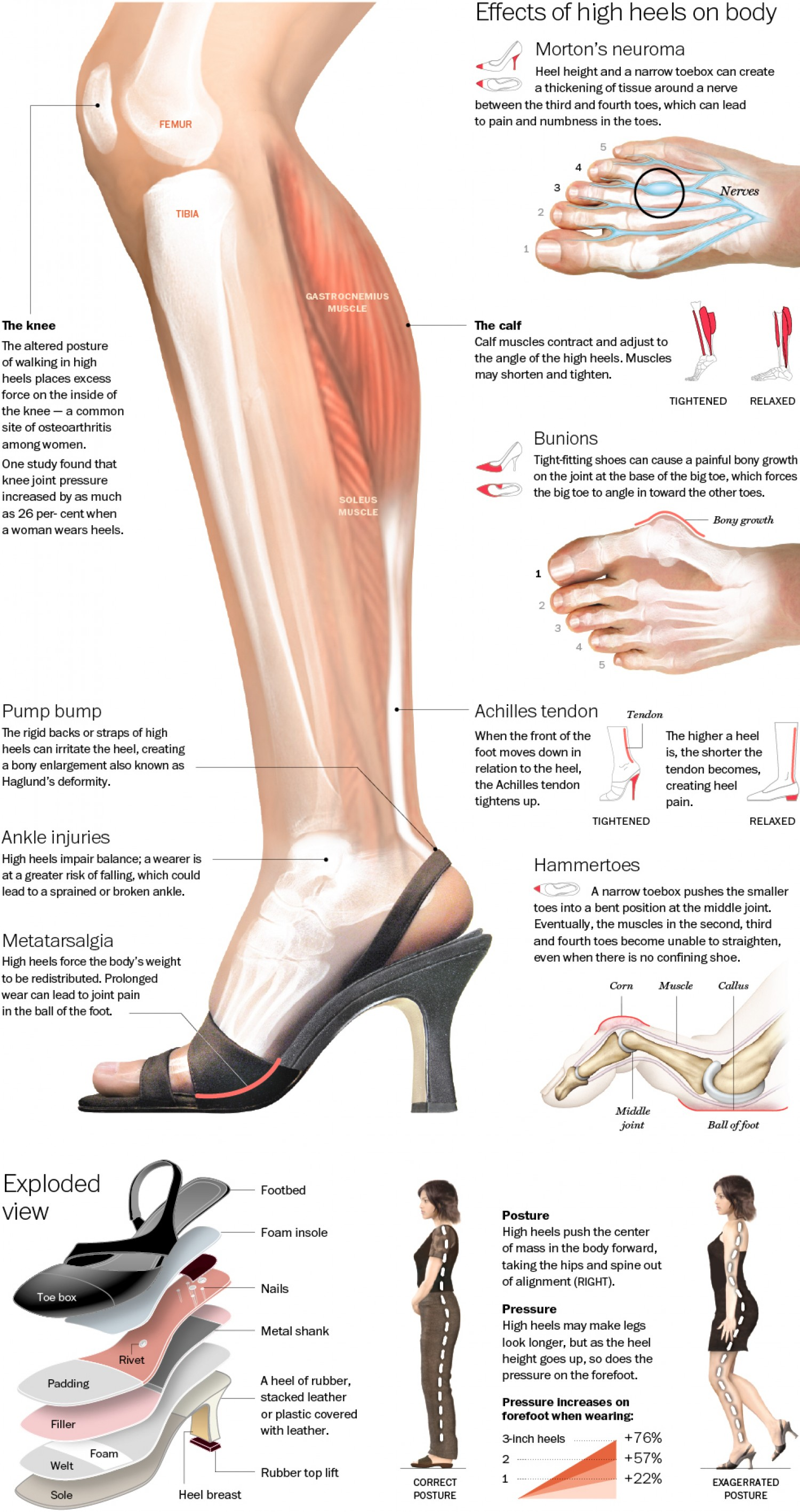 The health problems that wearing high heels could cause you infographic