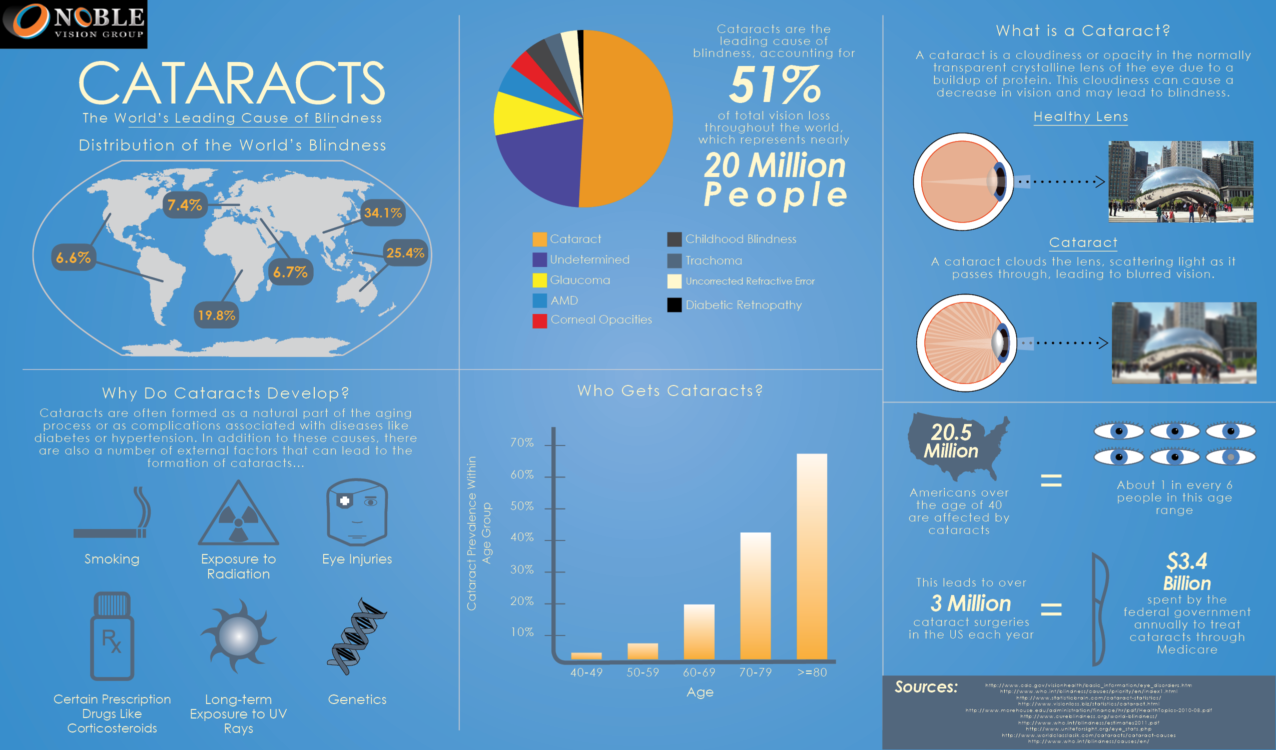 Cataract Guide Infographic