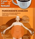 Everything You Should Know About Parkinson's Disease Infographic