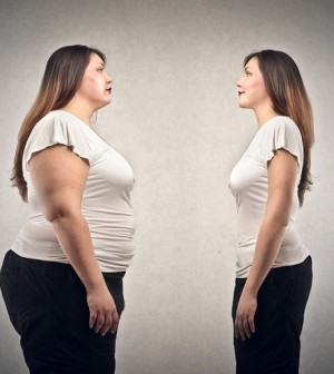 Pre-op gastric band diet plan