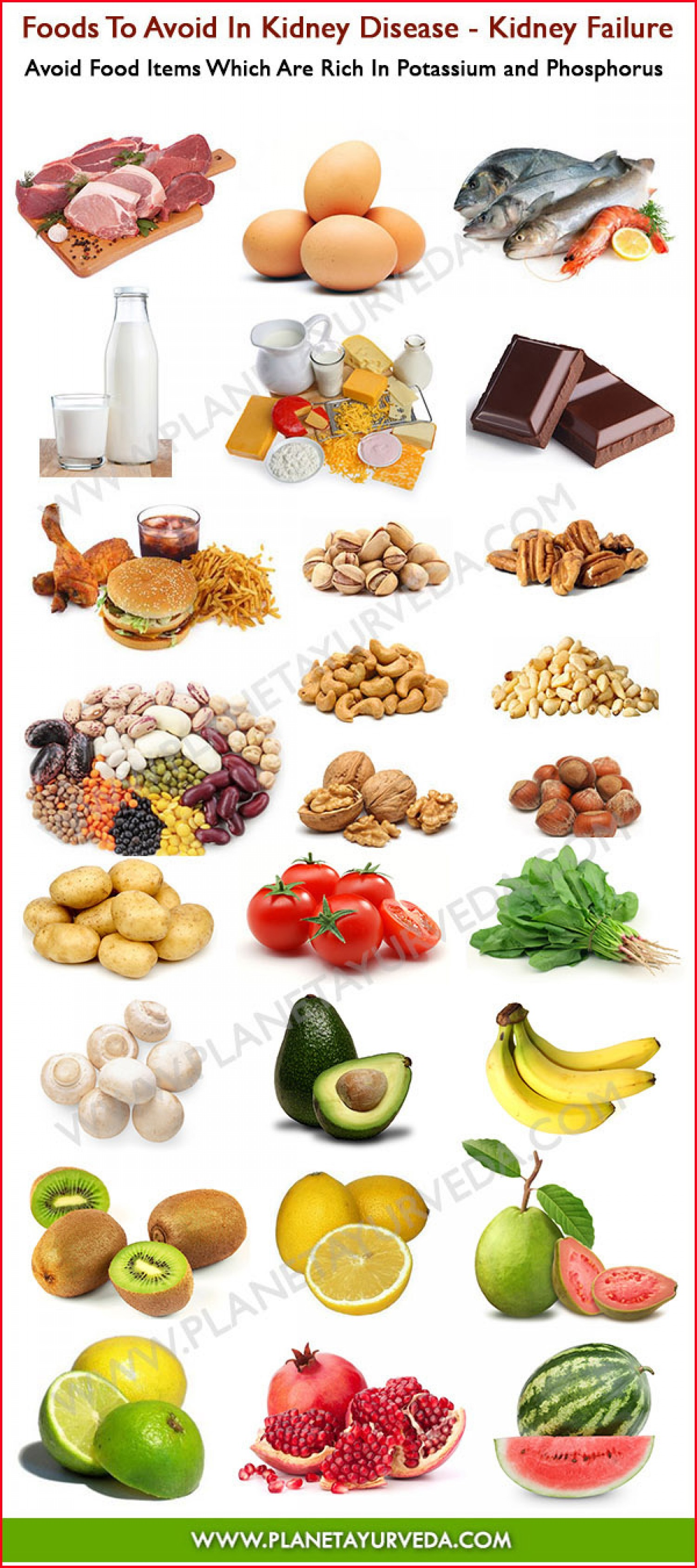 Foods To Avoid In Kidney Disease Infographic Everyone Should Aware Off