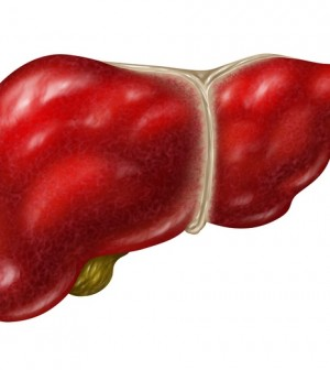 how to get rid of liver stones