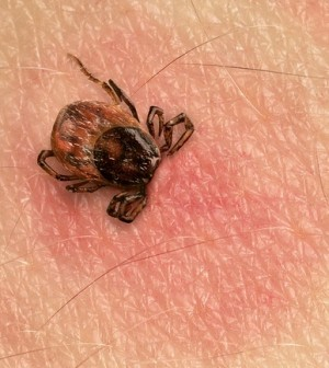 Best Plants For Repelling Ticks And Fleas Naturally