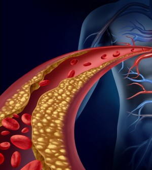Natural Ways To Clear Blocked Arteries