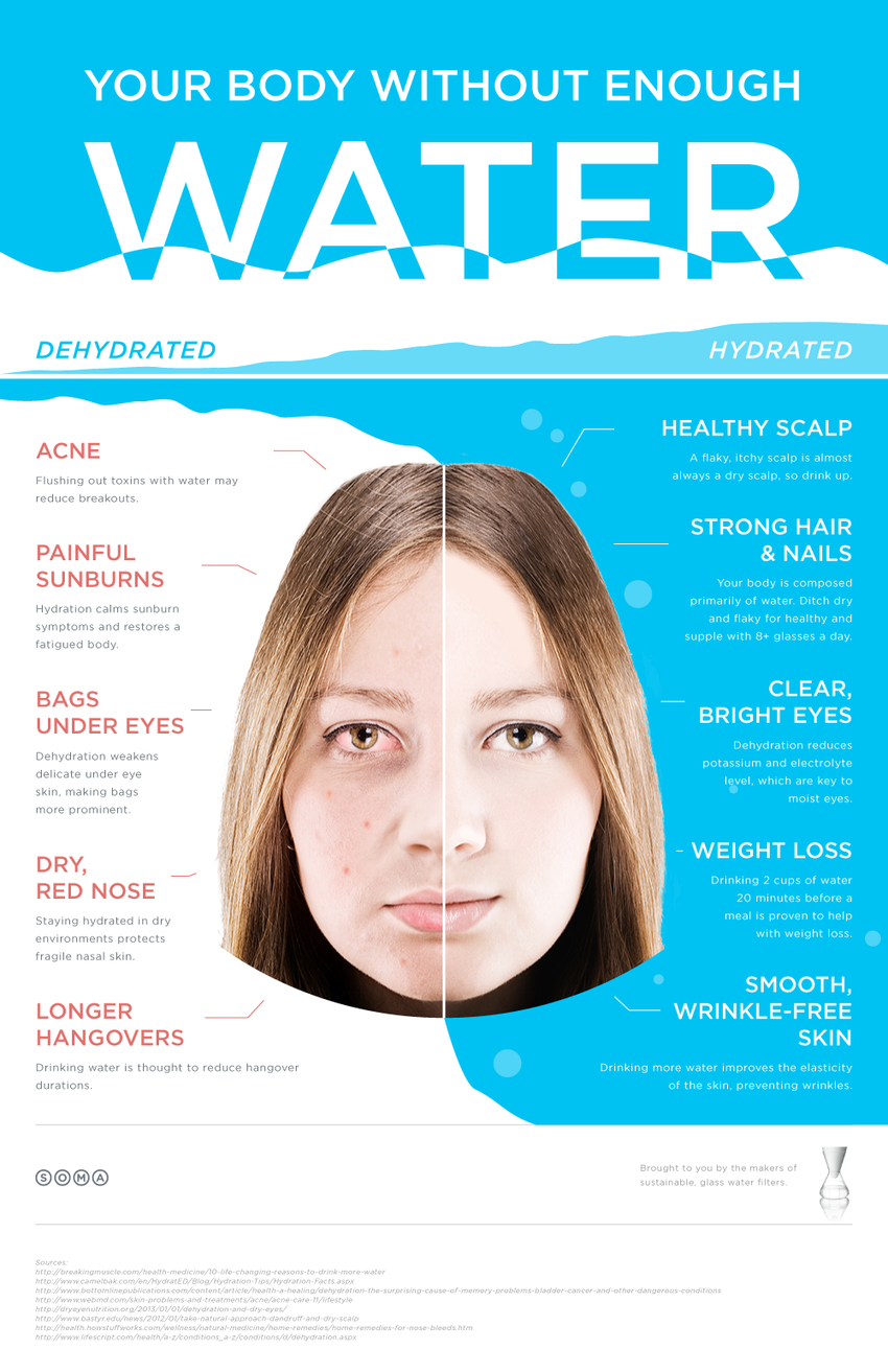 5 Benefits of Water Infographic