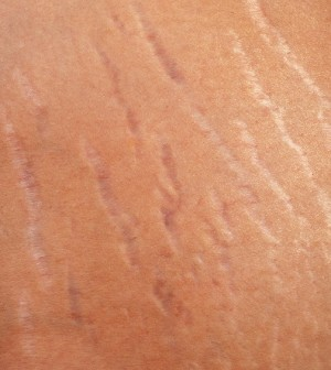 12 Natural Ways To Get Rid Of Ugly Stretch Marks 9 Is