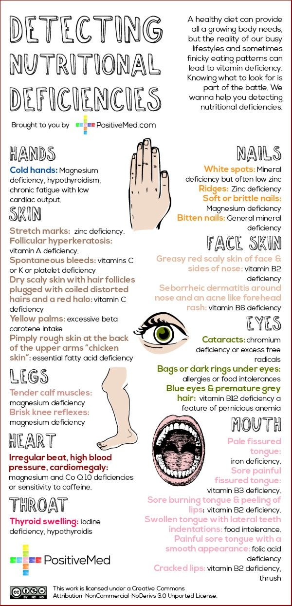 Learn To Detect Nutrient Deficiencies By These Simple Body Signs Infographic